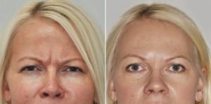 Botox lwia zmarszczka