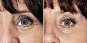 Botox kurze łapki