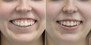 Botox uśmiech dziąsłowy
